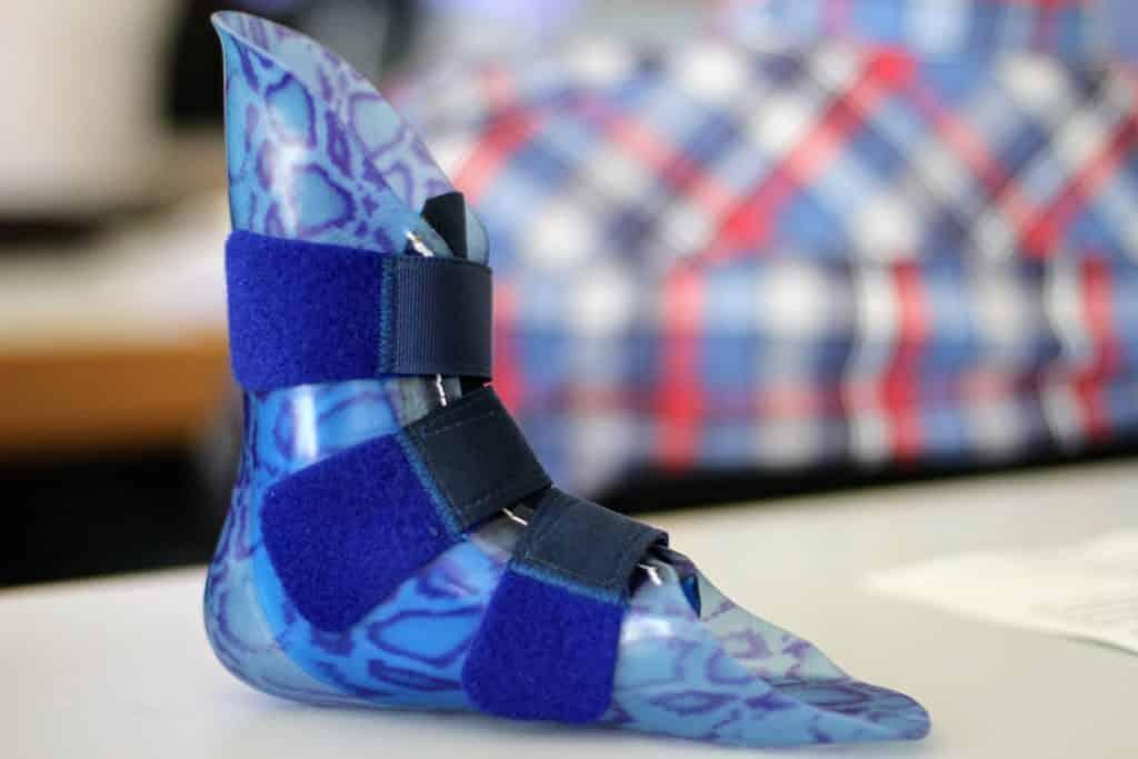 3D Drucker stellen passgenaue Prothesen her
